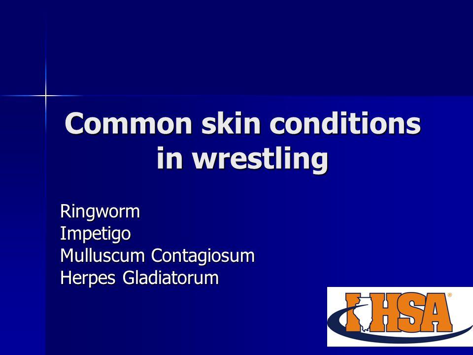 Common skin conditions in wrestling RingwormImpetigo Mulluscum Contagiosum Herpes Gladiatorum