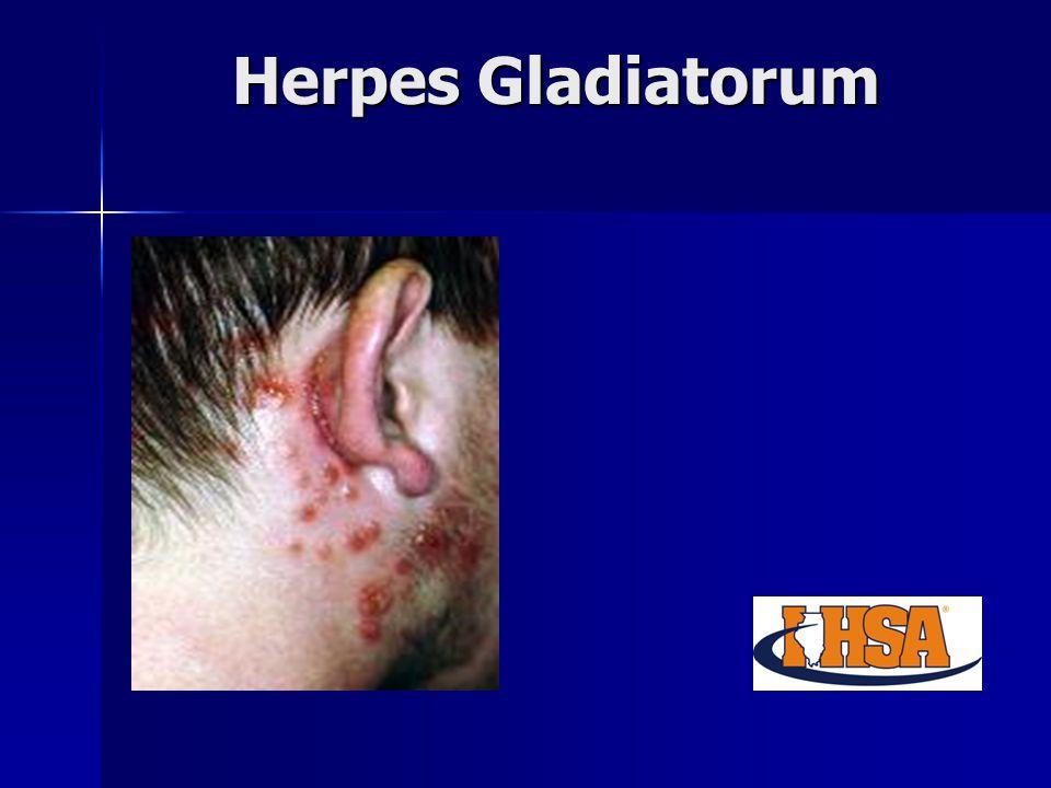Herpes Gladiatorum