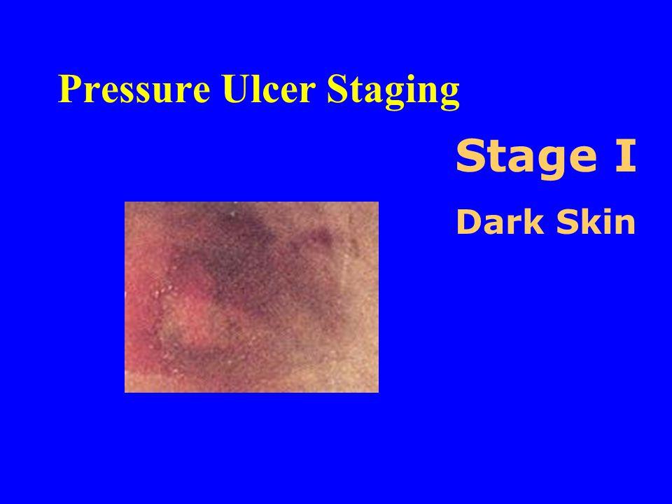 Pressure Ulcer Staging Stage I Dark Skin