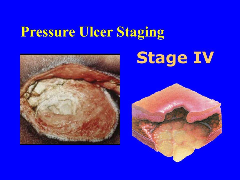Pressure Ulcer Staging Stage IV