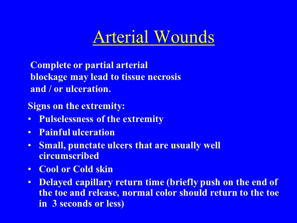 Arterial Wounds Signs on the extremity: Pulselessness of the extremity Painful ulceration Small, punctate ulcers that are usually well circumscribed C