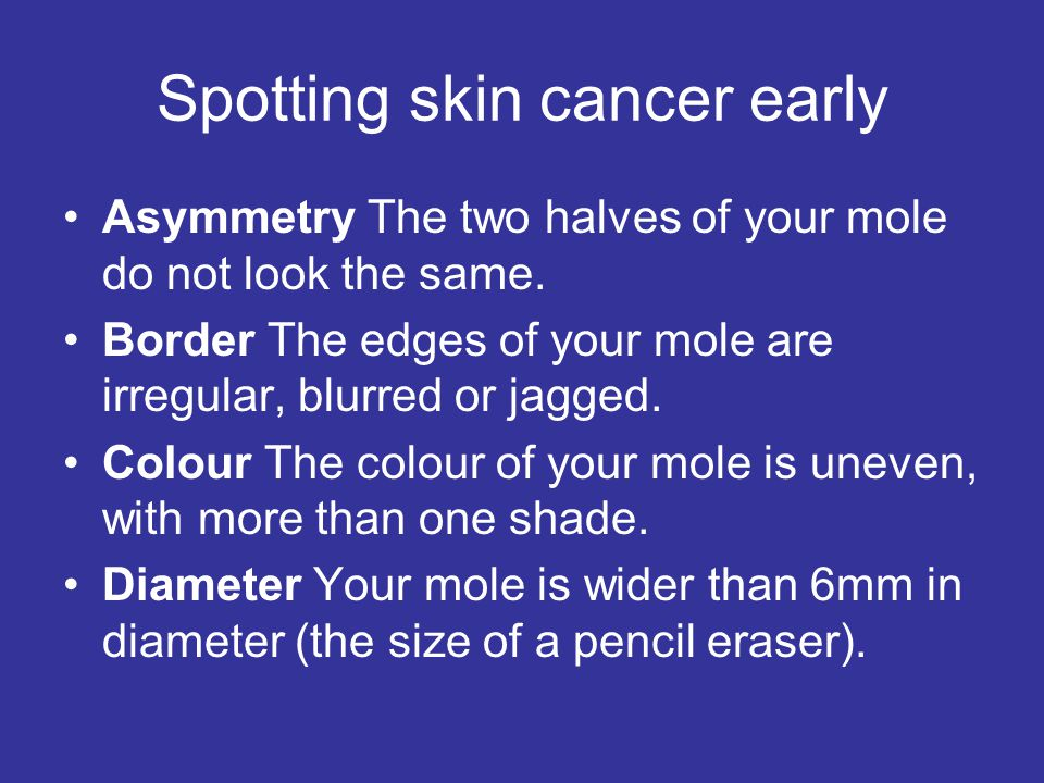 Spotting skin cancer early Asymmetry The two halves of your mole do not look the same. Border The edges of your mole are irregular, blurred or jagged.