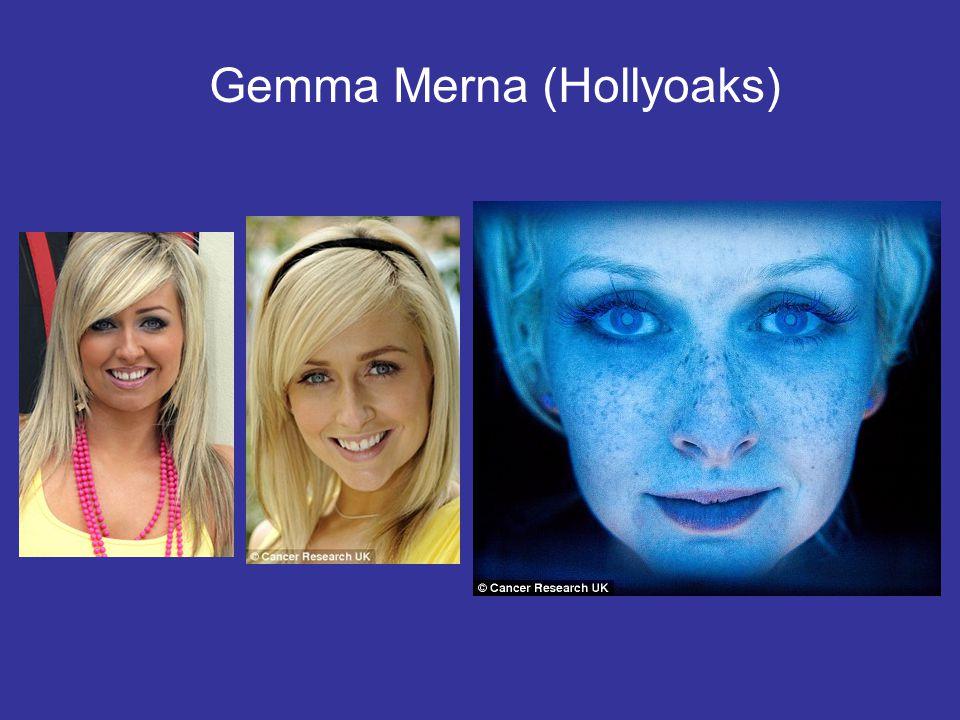 Gemma Merna (Hollyoaks)