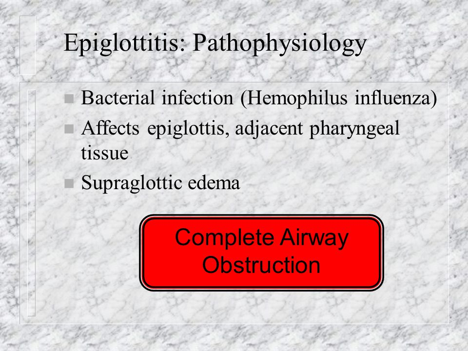 Epiglottitis: Pathophysiology n Bacterial infection (Hemophilus influenza) n Affects epiglottis, adjacent pharyngeal tissue n Supraglottic edema Complete Airway Obstruction