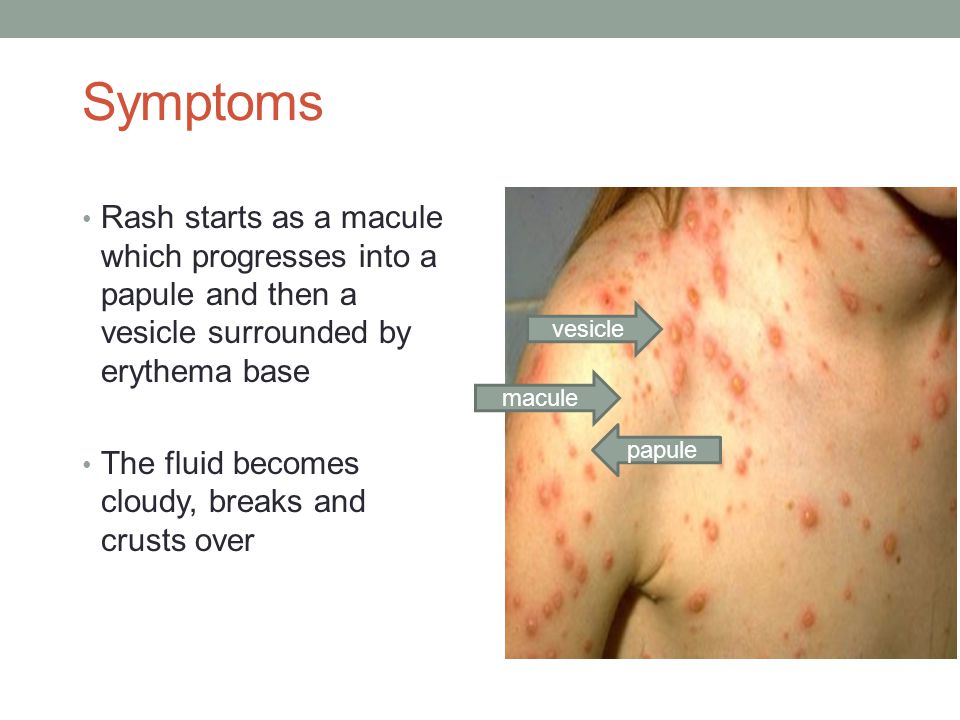 Symptoms Rash starts as a macule which progresses into a papule and then a vesicle surrounded by erythema base The fluid becomes cloudy, breaks and cr