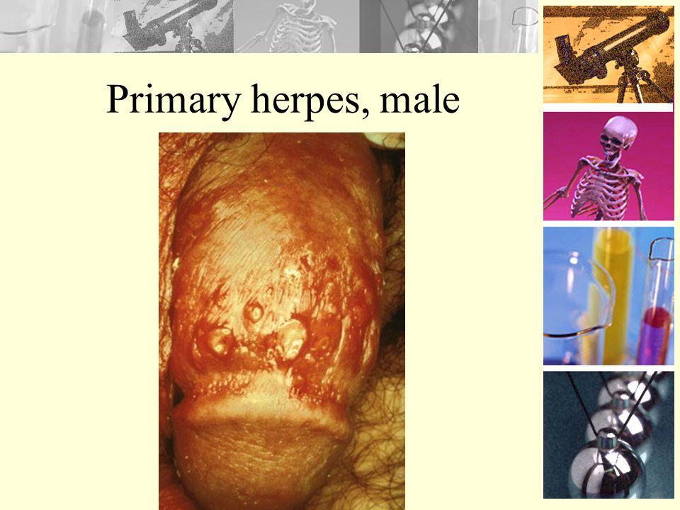 Primary herpes, female