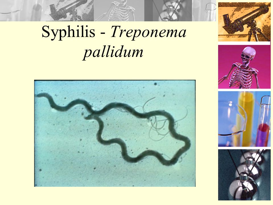 Syphilis Cause by bacterium –Treponema pallidum Between 2001 and 2002, cases increased 12.5% Infections are highest among –Women: 20-24 years old –Men