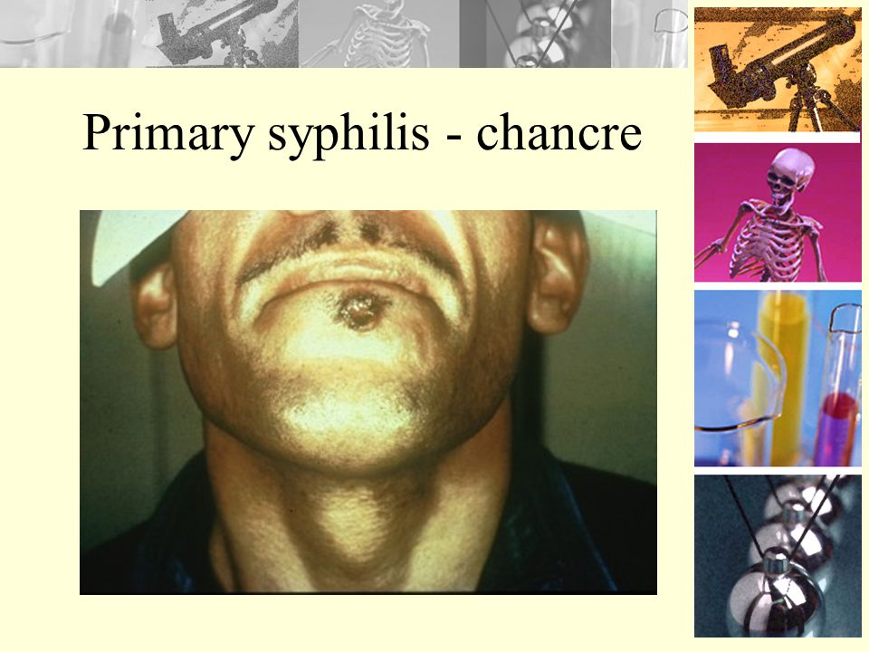 Syphilis Contraction –Through direct contact from a syphilis sore Symptoms –Primary stage Single sore called chancre –Secondary stage Skin rash and mu