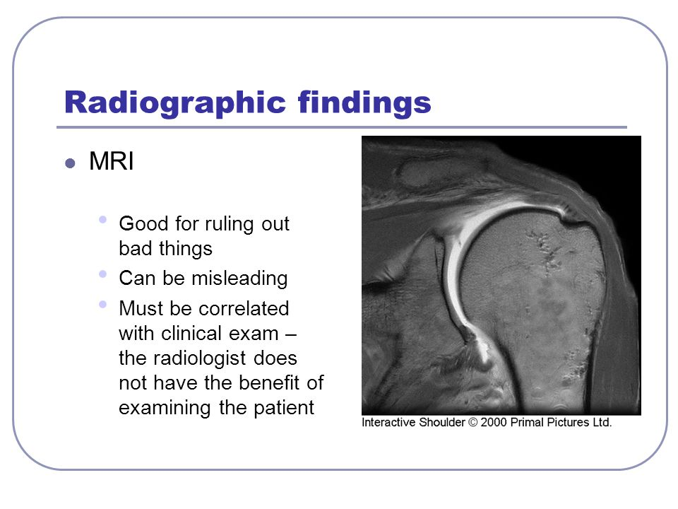 Radiographic findings MRI Good for ruling out bad things Can be misleading Must be correlated with clinical exam – the radiologist does not have the b