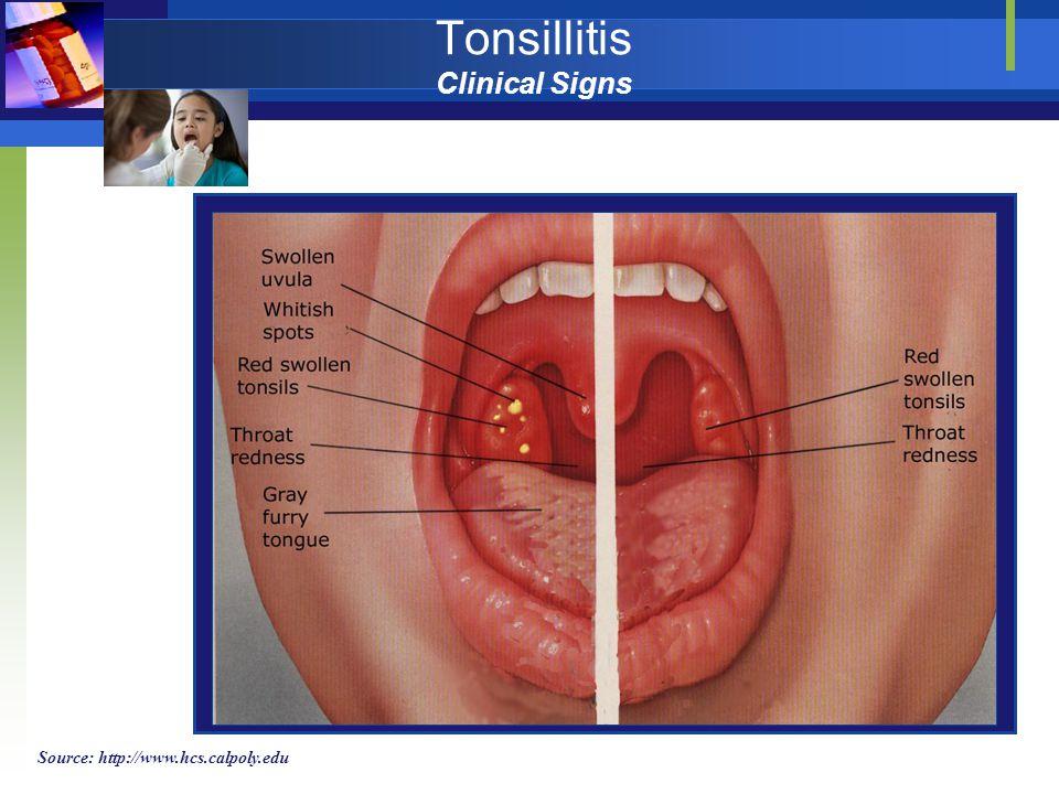 Tonsillitis Clinical Signs Source: http://www.hcs.calpoly.edu
