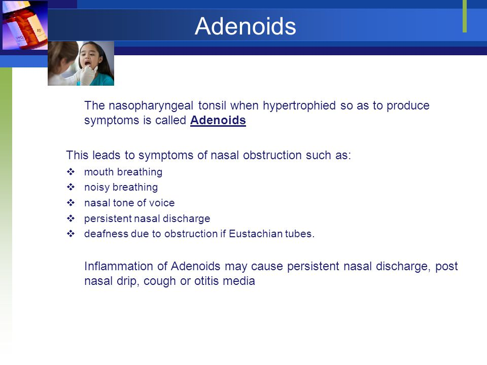 Adenoids The nasopharyngeal tonsil when hypertrophied so as to produce symptoms is called Adenoids This leads to symptoms of nasal obstruction such as