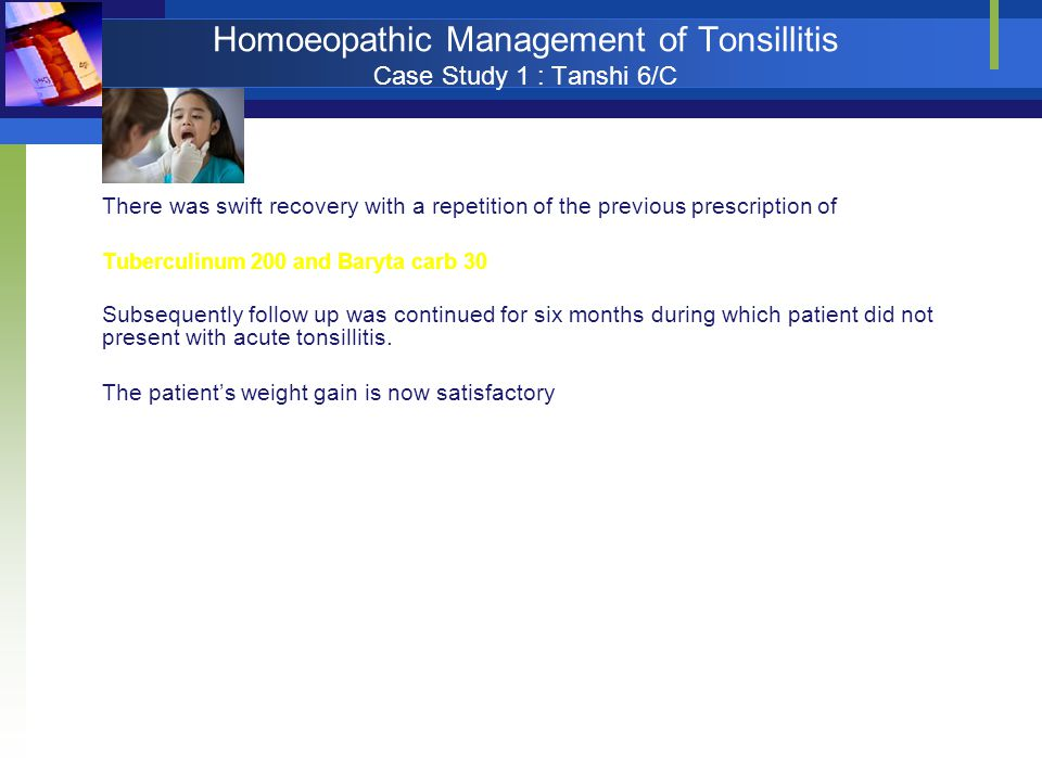 Homoeopathic Management of Tonsillitis Case Study 1 : Tanshi 6/C There was swift recovery with a repetition of the previous prescription of Tuberculin
