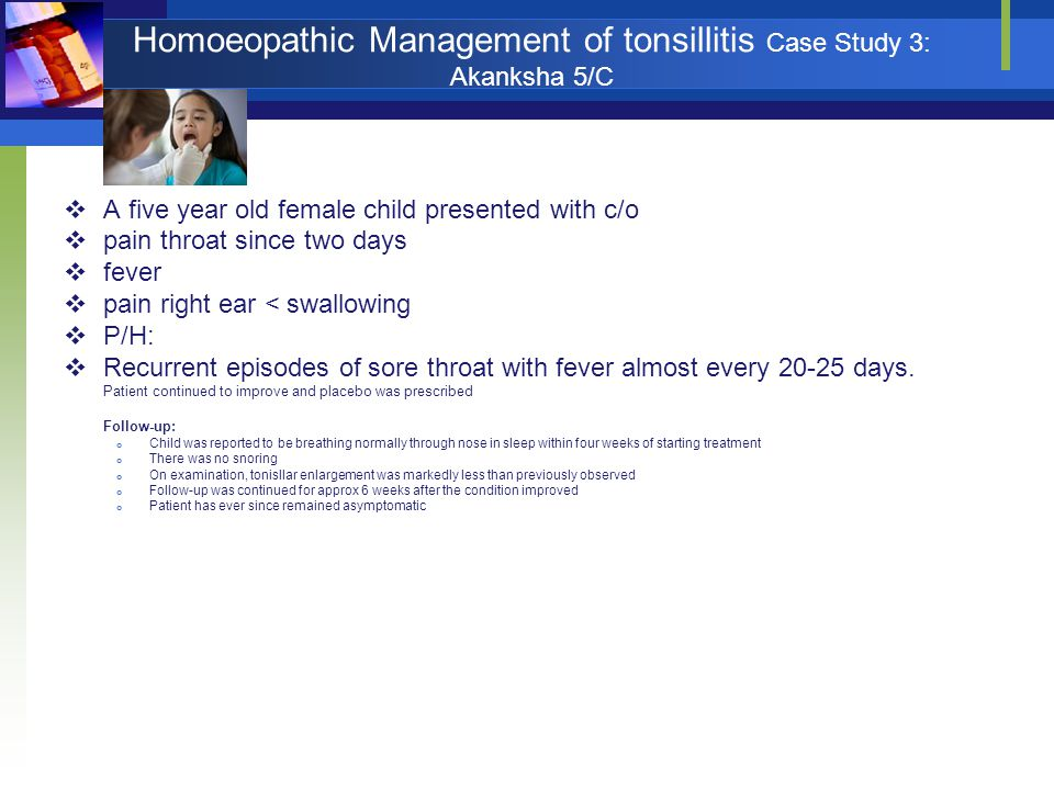 Homoeopathic Management of tonsillitis Case Study 3: Akanksha 5/C  A five year old female child presented with c/o  pain throat since two days  fev
