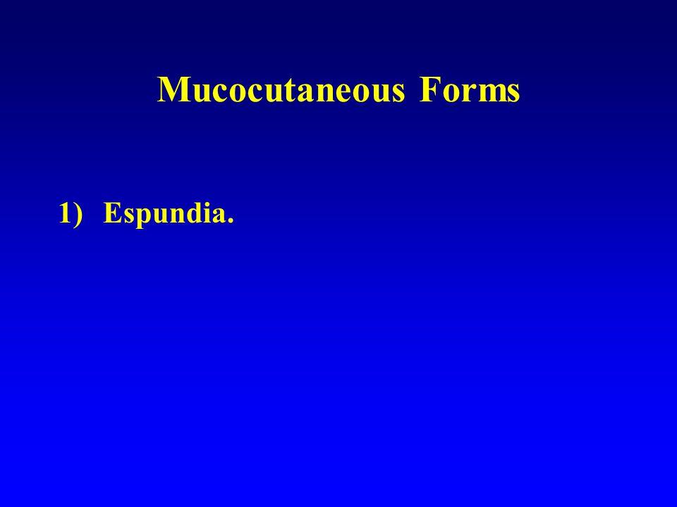 Mucocutaneous Forms 1)Espundia.