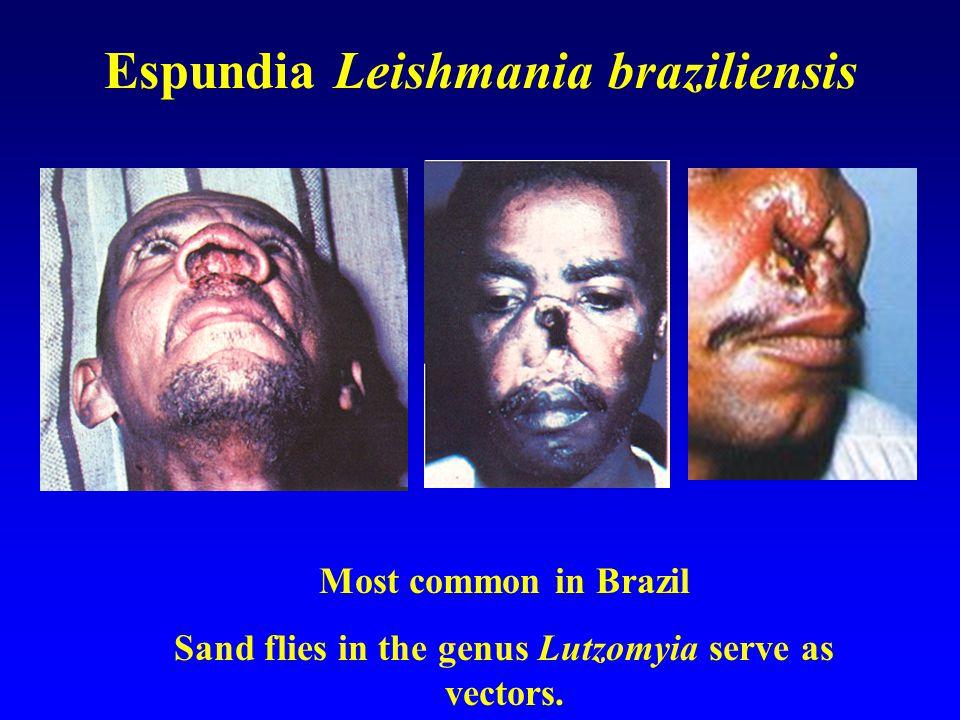 Espundia Leishmania braziliensis Most common in Brazil Sand flies in the genus Lutzomyia serve as vectors.