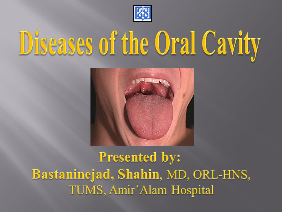  Oral cavity  Lips  Tongue  Floor of Mouth  Buccal mucosa  Palate  Retromolar trigone
