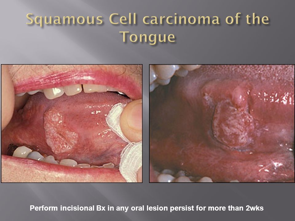 Perform incisional Bx in any oral lesion persist for more than 2wks