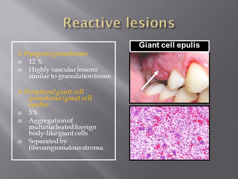 2-Pyogenic granulomas  12 %  Highly vascular lesions similar to granulation tissue. 3-Peripheral giant cell granuloma (giant cell epulis)  5%  Agg