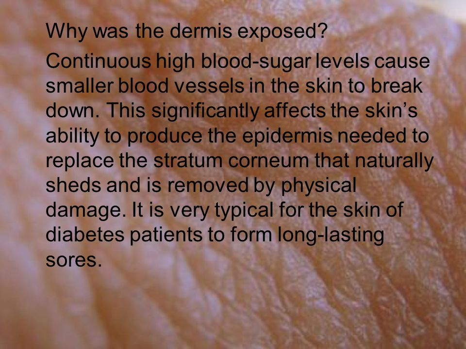 Why was the dermis exposed.
