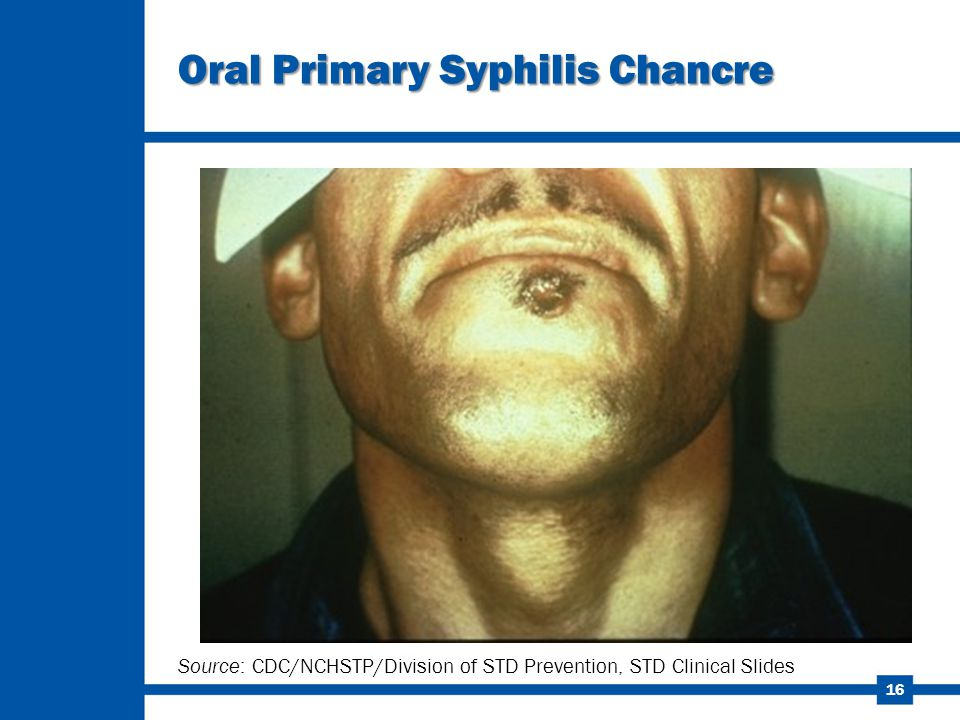 16 Oral Primary Syphilis Chancre Source: CDC/NCHSTP/Division of STD Prevention, STD Clinical Slides
