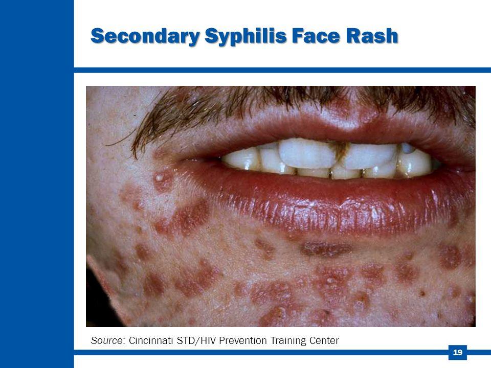 19 Secondary Syphilis Face Rash Source: Cincinnati STD/HIV Prevention Training Center