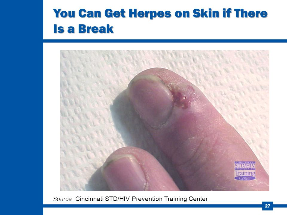27 You Can Get Herpes on Skin if There Is a Break Source: Cincinnati STD/HIV Prevention Training Center