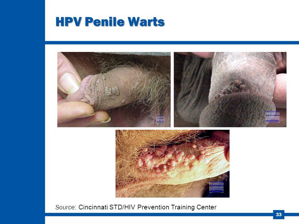33 HPV Penile Warts Source: Cincinnati STD/HIV Prevention Training Center
