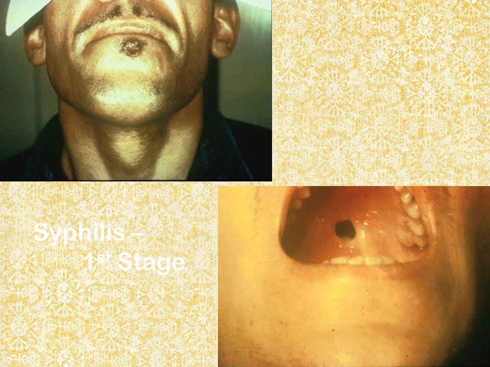 Syphilis – 1 st Stage