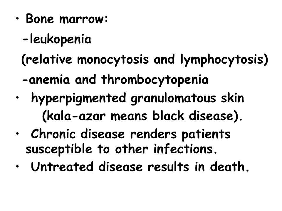 Bone marrow: - leukopenia (relative monocytosis and lymphocytosis) -anemia and thrombocytopenia hyperpigmented granulomatous skin (kala-azar means black disease).