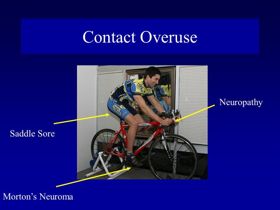 Contact Overuse Saddle Sore Morton's Neuroma Neuropathy
