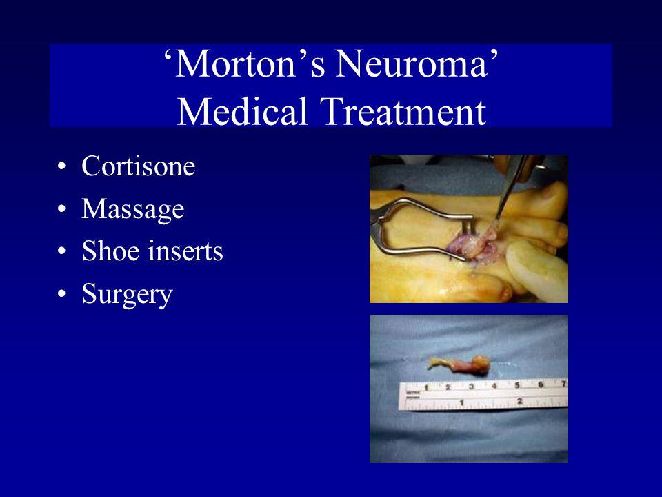 'Morton's Neuroma' Medical Treatment Cortisone Massage Shoe inserts Surgery