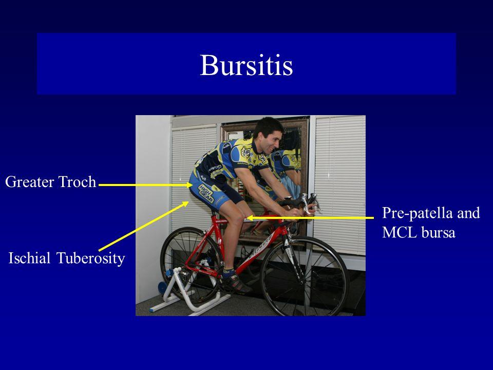 Bursitis Pre-patella and MCL bursa Greater Troch Ischial Tuberosity