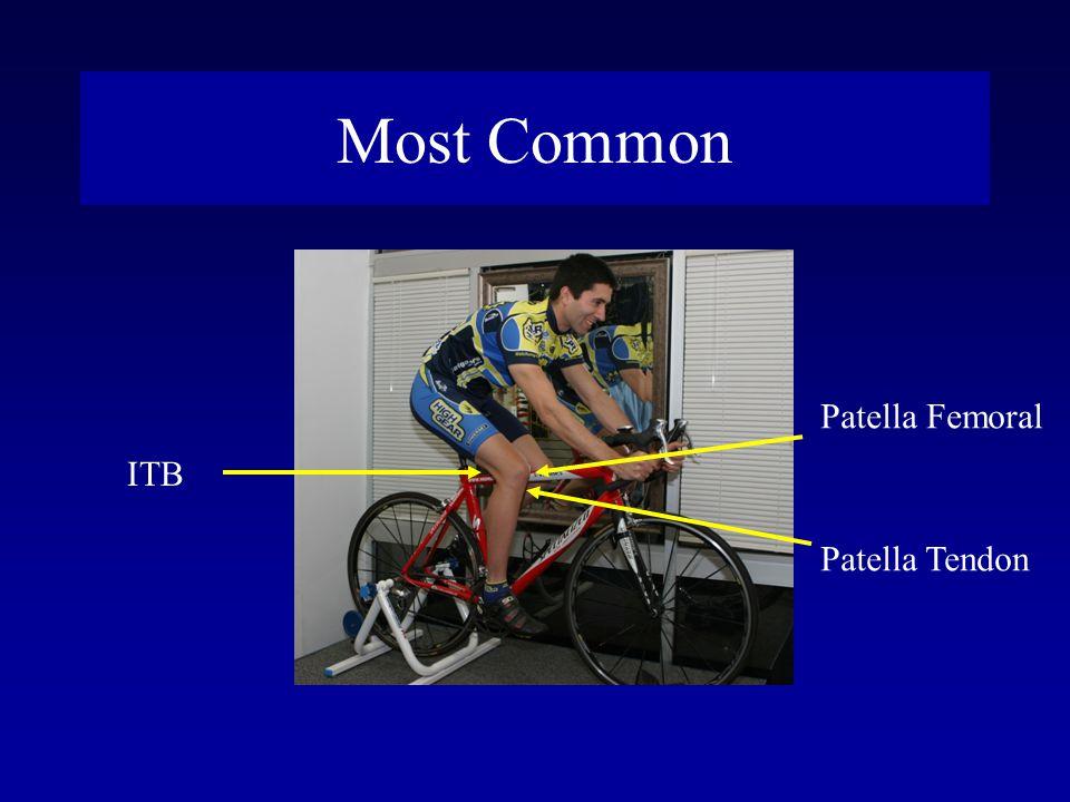 Most Common ITB Patella Femoral Patella Tendon