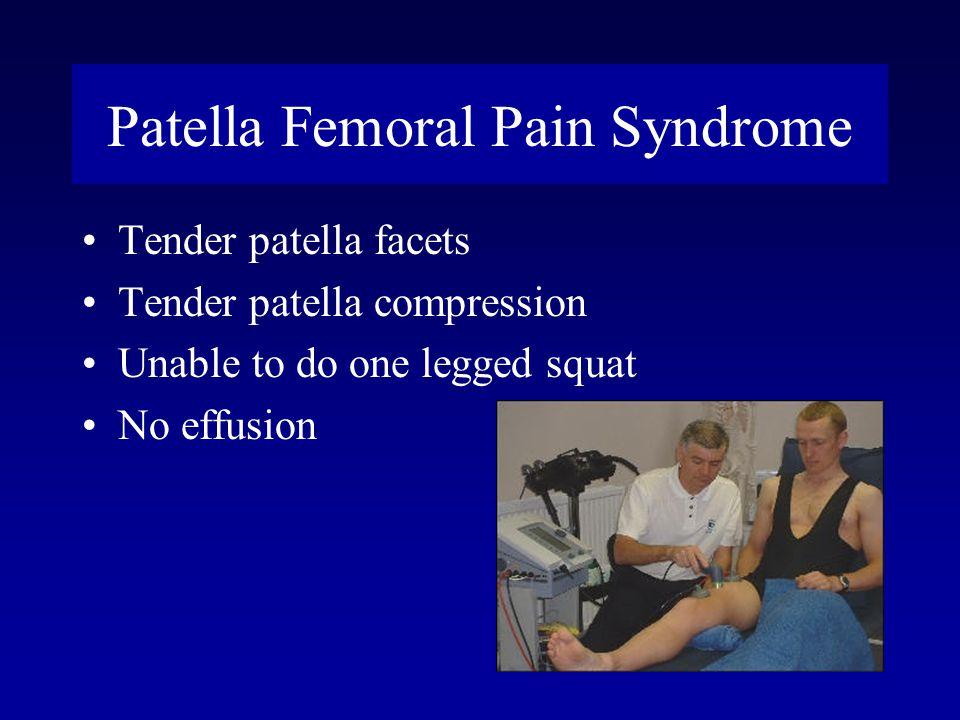 Patella Femoral Pain Syndrome Tender patella facets Tender patella compression Unable to do one legged squat No effusion