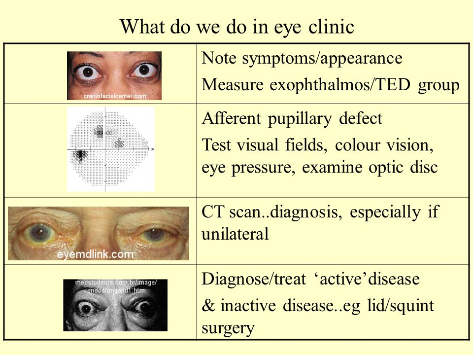 What do we do in eye clinic Note symptoms/appearance Measure exophthalmos/TED group Afferent pupillary defect Test visual fields, colour vision, eye pressure, examine optic disc CT scan..diagnosis, especially if unilateral Diagnose/treat 'active'disease & inactive disease..eg lid/squint surgery