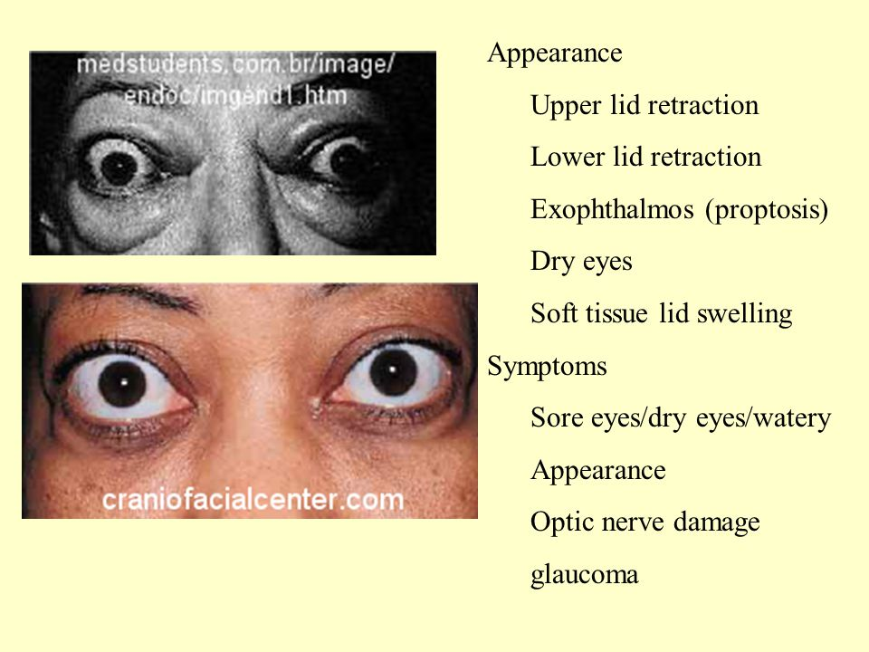 Appearance Upper lid retraction Lower lid retraction Exophthalmos (proptosis) Dry eyes Soft tissue lid swelling Symptoms Sore eyes/dry eyes/watery Appearance Optic nerve damage glaucoma