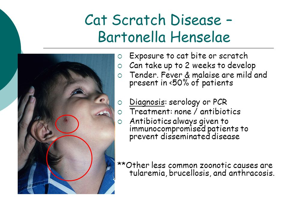 Cat Scratch Disease – Bartonella Henselae  Exposure to cat bite or scratch  Can take up to 2 weeks to develop  Tender.