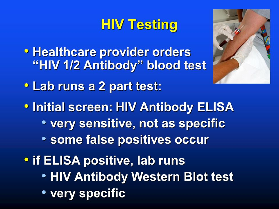 "HIV Testing Healthcare provider orders ""HIV 1/2 Antibody"" blood test Healthcare provider orders ""HIV 1/2 Antibody"" blood test Lab runs a 2 part test:"