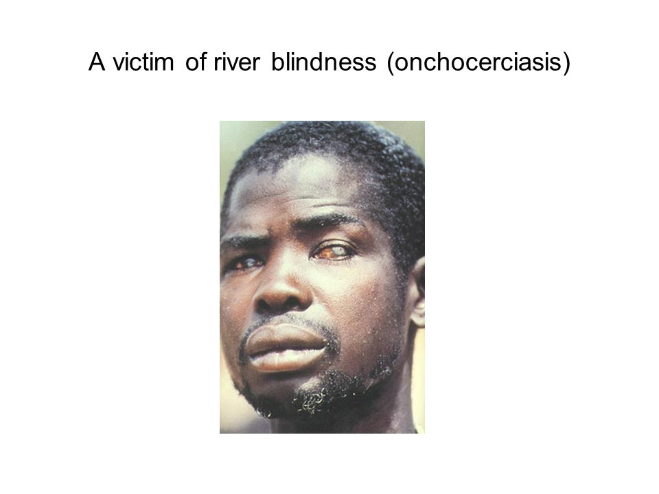 A victim of river blindness (onchocerciasis)