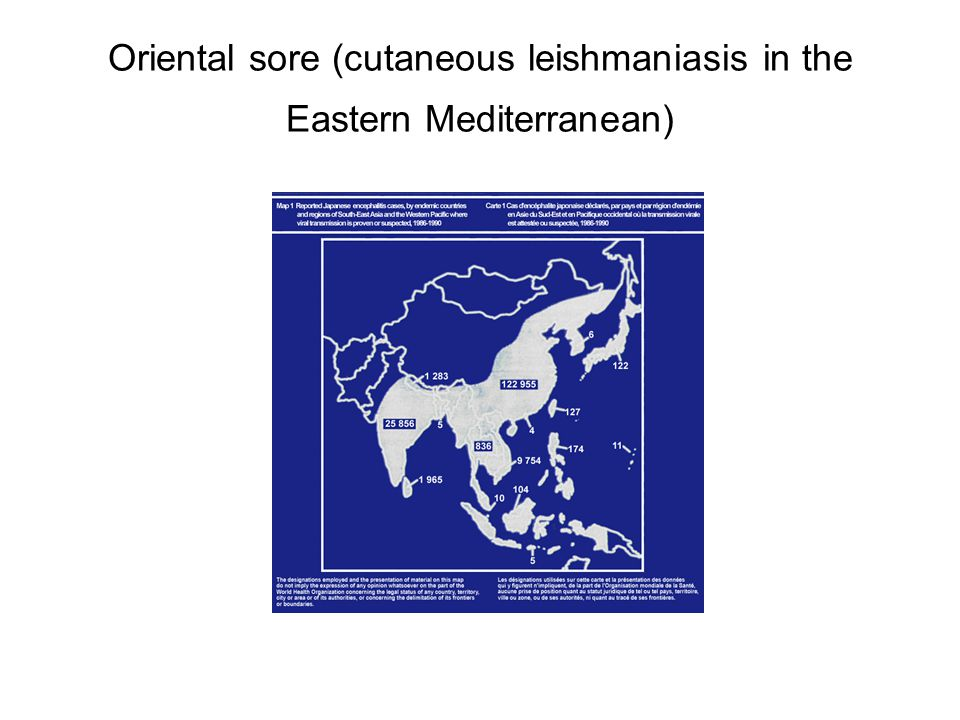Oriental sore (cutaneous leishmaniasis in the Eastern Mediterranean)