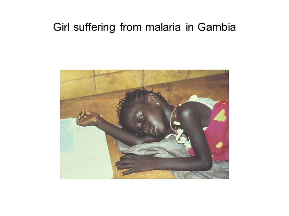 Girl suffering from malaria in Gambia