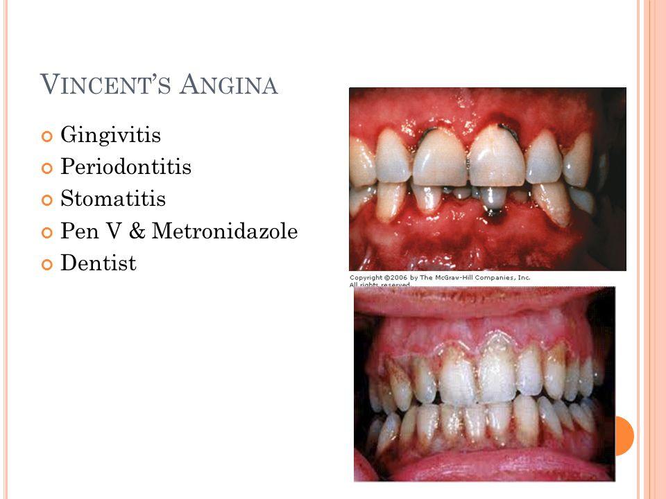 V INCENT ' S A NGINA Gingivitis Periodontitis Stomatitis Pen V & Metronidazole Dentist