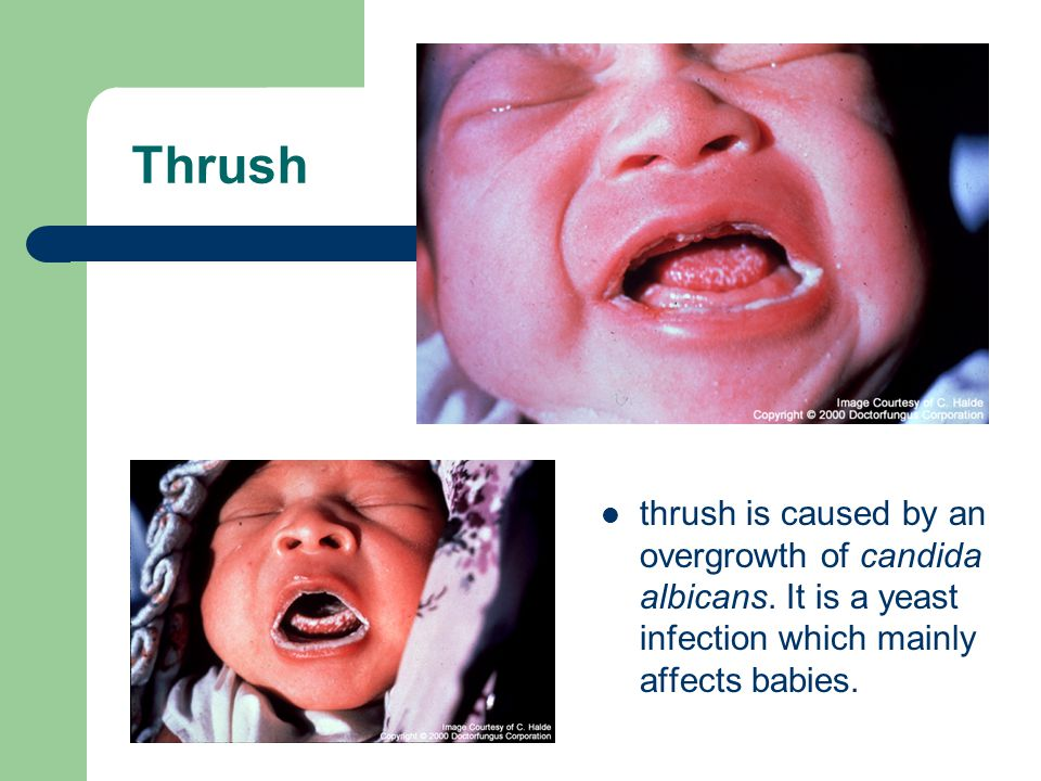 Thrush thrush is caused by an overgrowth of candida albicans.