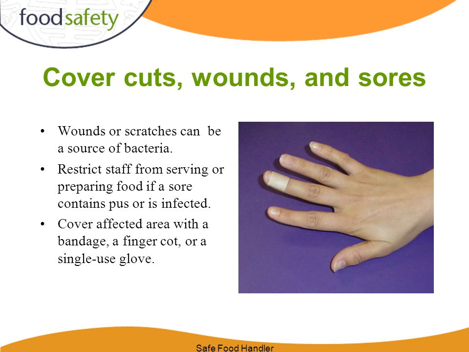 Safe Food Handler Cover cuts, wounds, and sores Wounds or scratches can be a source of bacteria.
