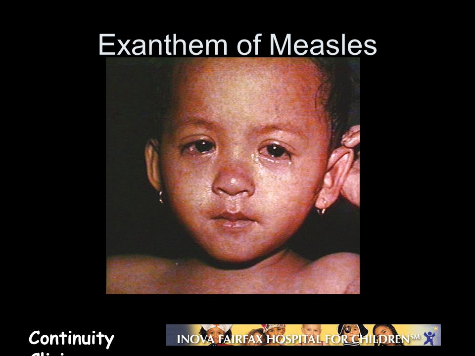 Continuity Clinic Exanthem of Measles