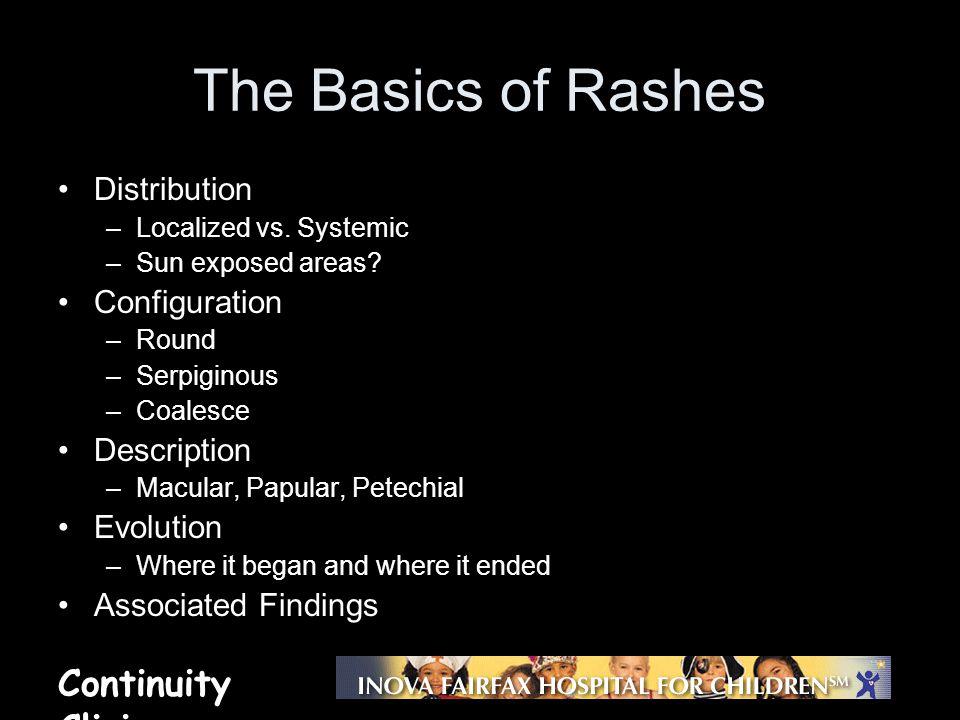 Continuity Clinic The Basics of Rashes Distribution –Localized vs. Systemic –Sun exposed areas? Configuration –Round –Serpiginous –Coalesce Descriptio