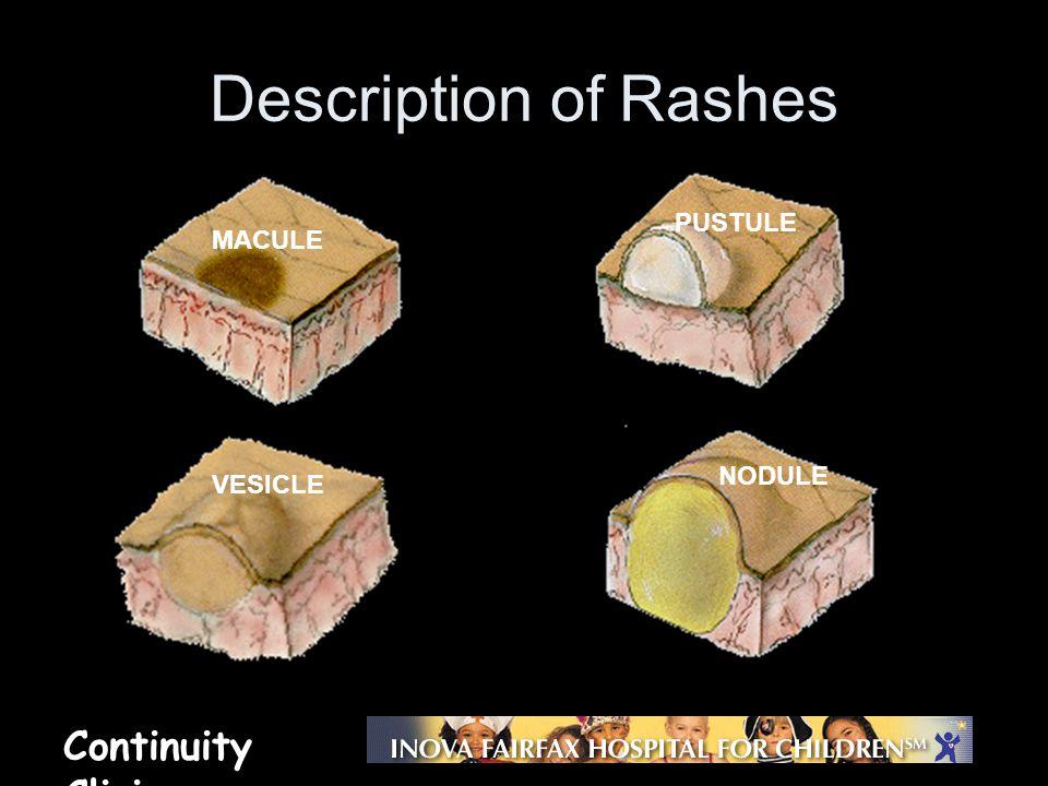 Continuity Clinic Description of Rashes MACULE PUSTULE VESICLE NODULE