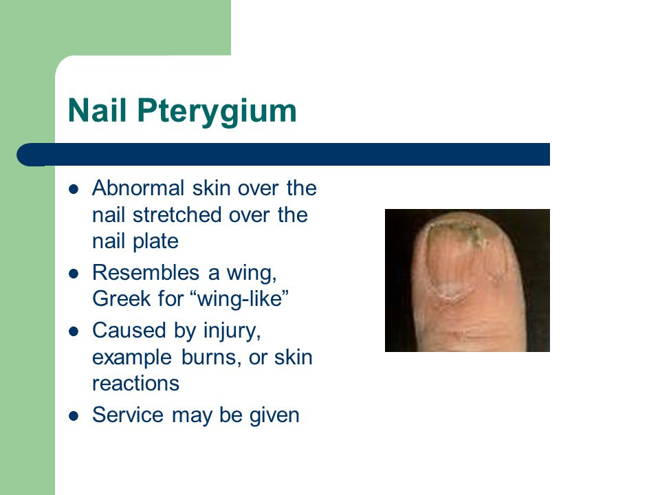 """Nail Pterygium Abnormal skin over the nail stretched over the nail plate Resembles a wing, Greek for """"wing-like"""" Caused by injury, example burns, or s"""