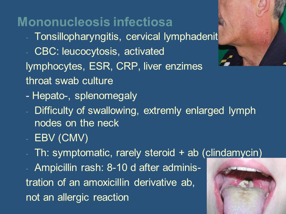 Mononucleosis infectiosa - Tonsillopharyngitis, cervical lymphadenitis - CBC: leucocytosis, activated lymphocytes, ESR, CRP, liver enzimes throat swab culture - Hepato-, splenomegaly - Difficulty of swallowing, extremly enlarged lymph nodes on the neck - EBV (CMV) - Th: symptomatic, rarely steroid + ab (clindamycin) - Ampicillin rash: 8-10 d after adminis- tration of an amoxicillin derivative ab, not an allergic reaction