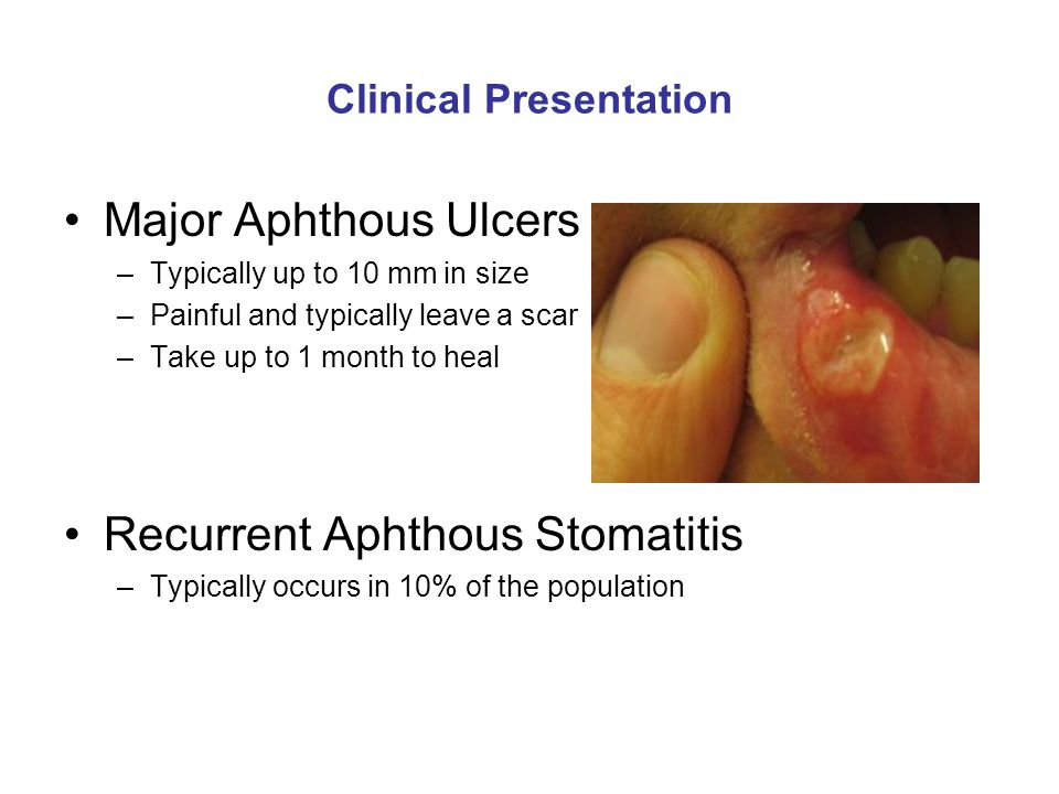 Clinical Presentation Major Aphthous Ulcers –Typically up to 10 mm in size –Painful and typically leave a scar –Take up to 1 month to heal Recurrent A